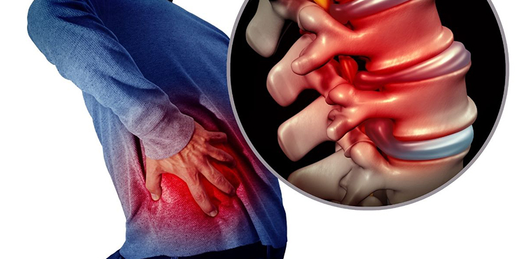Can Chronic Back Pain Be Cured? – How Surgery Can Help